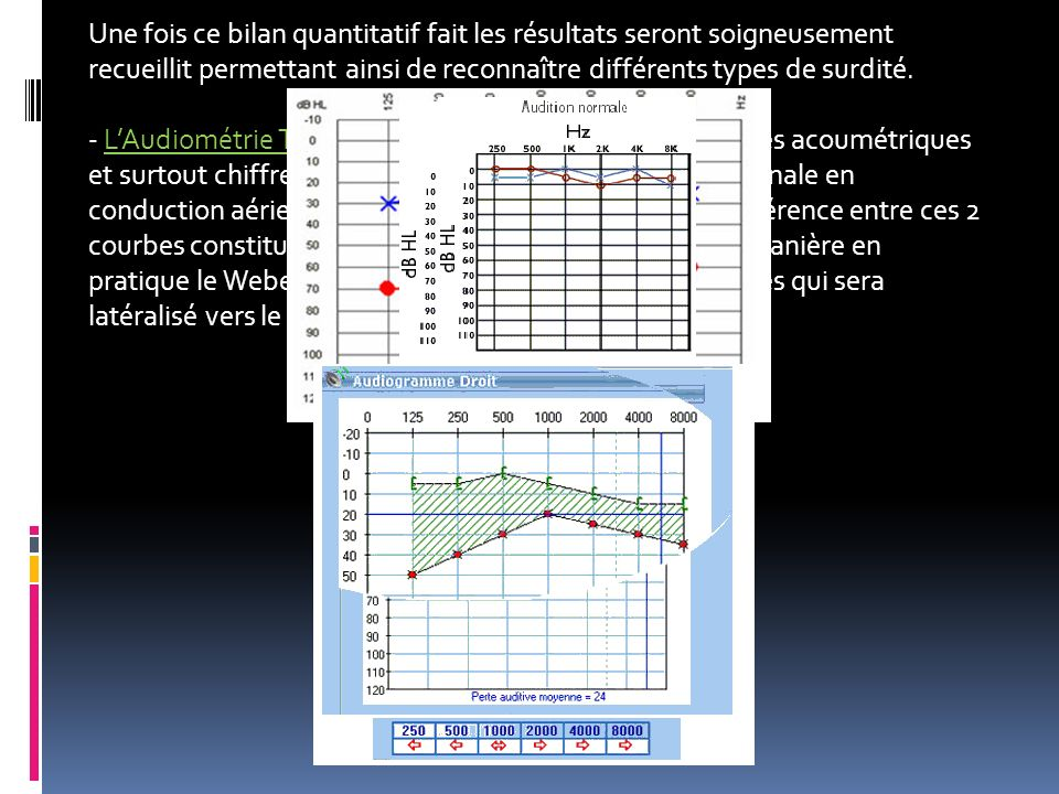 Une fois ce bilan quantitatif fait les résultats seront soigneusement recueillit permettant ainsi de reconnaître différents types de surdité.