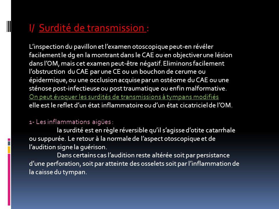 I/ Surdité de transmission :