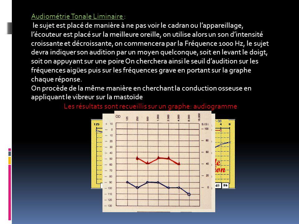 Les résultats sont recueillis sur un graphe: audiogramme