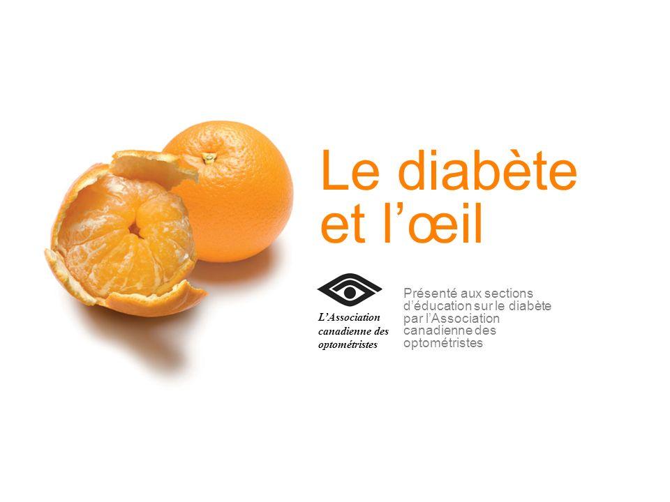 Le diabète et l'œil L'Association canadienne des optométristes.