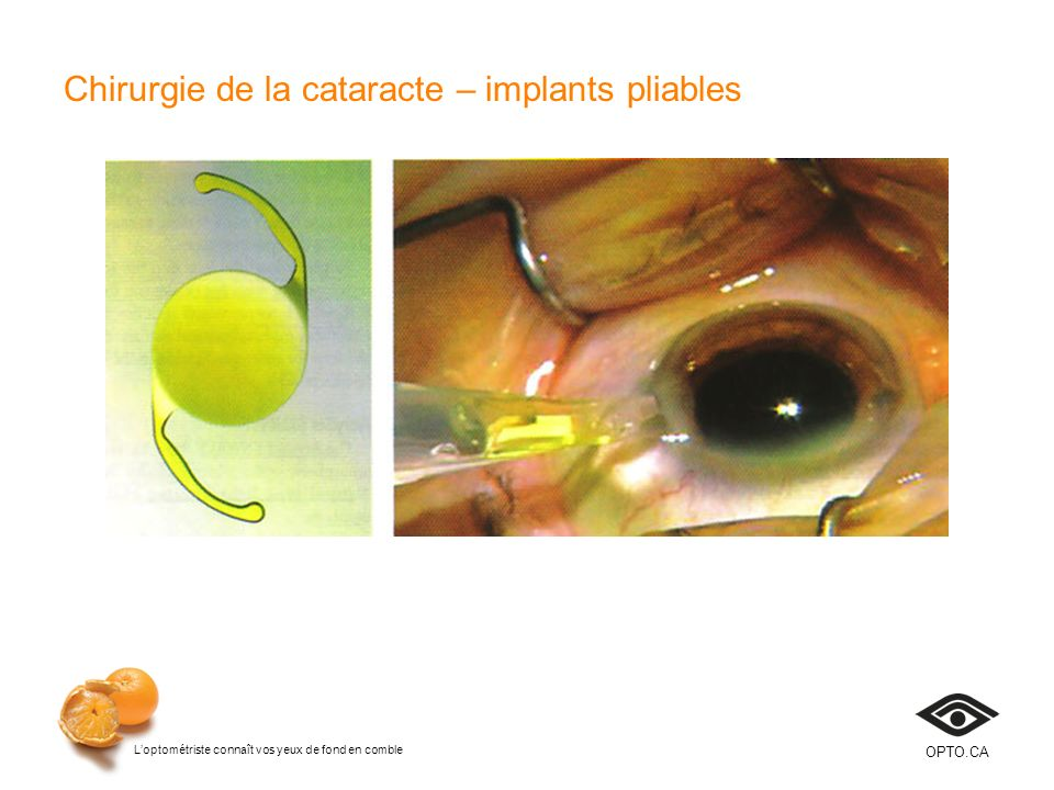 Chirurgie de la cataracte – implants pliables