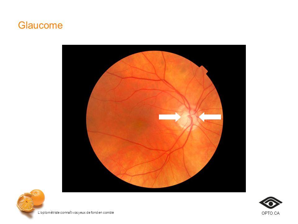 Glaucome Diapositive 14. Le glaucome est une maladie qui entraîne la détérioration et la mort des fibres nerveuses du nerf optique.