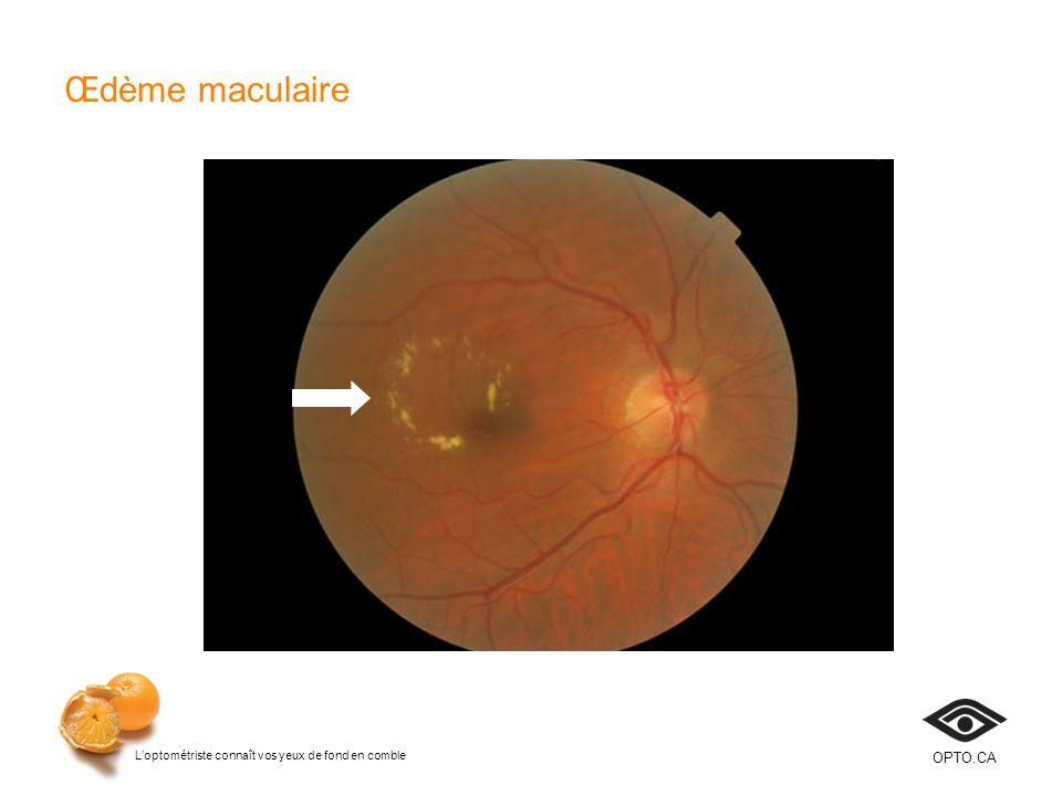 Œdème maculaire Diapositive 21 Cette diapositive illustre un OMSC.
