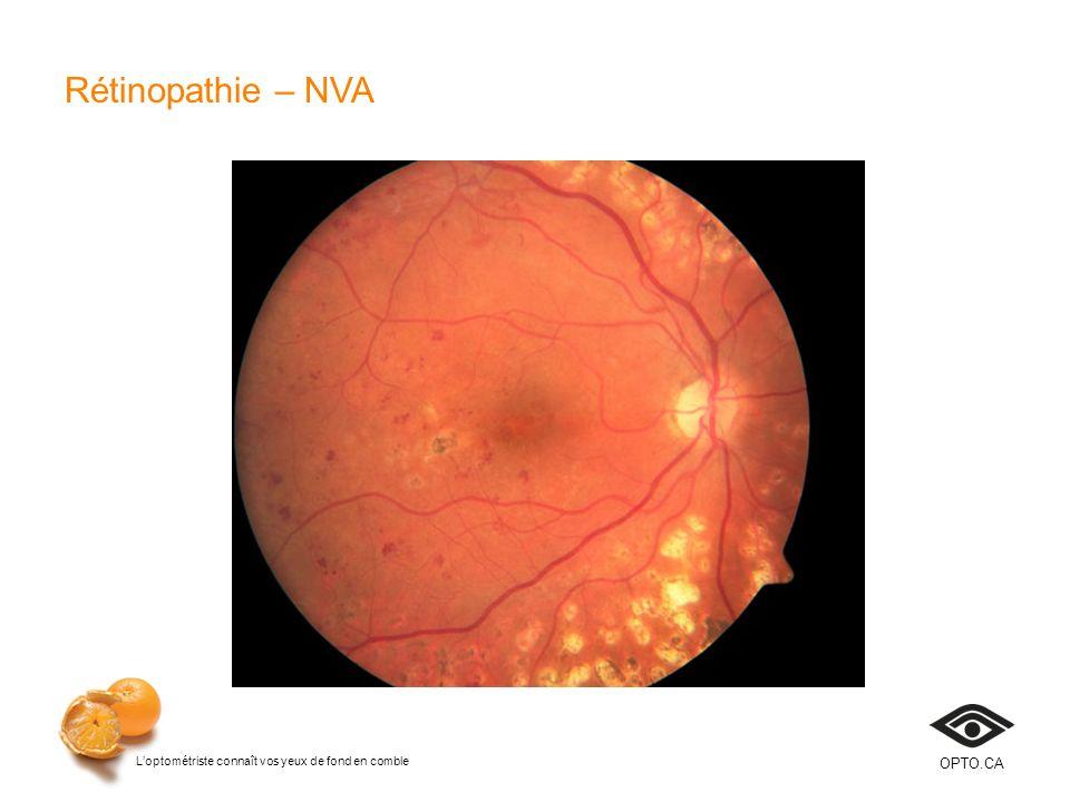 Rétinopathie – NVA Diapositive 25