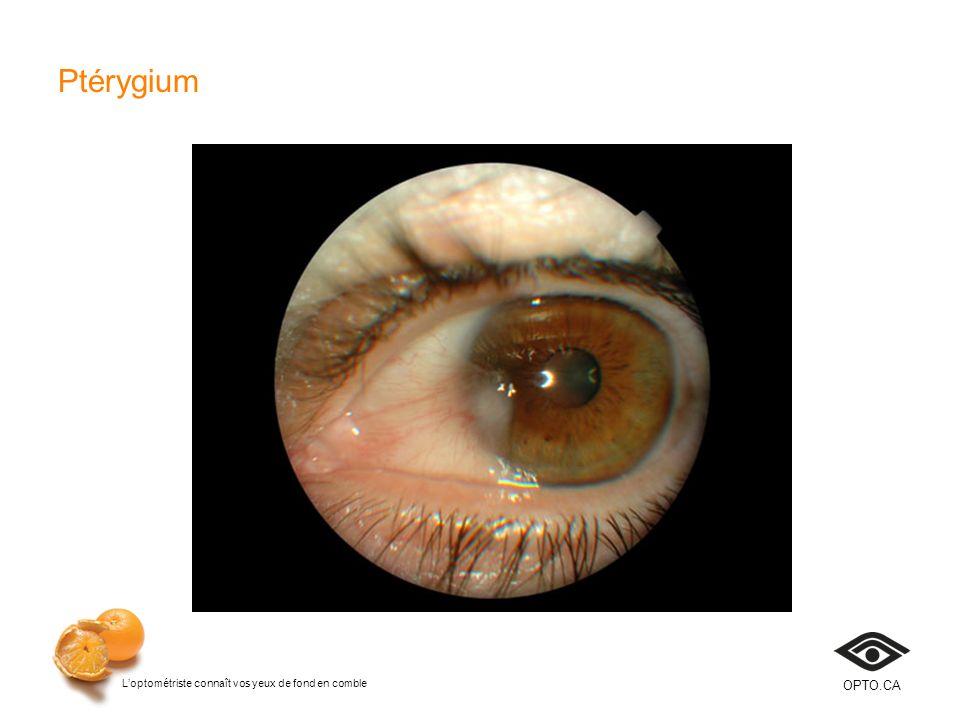 Ptérygium Diapositive 34