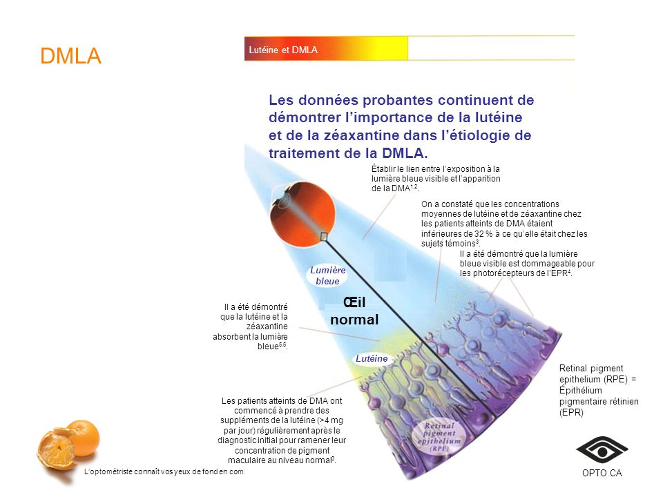 DMLA Lutéine et DMLA.