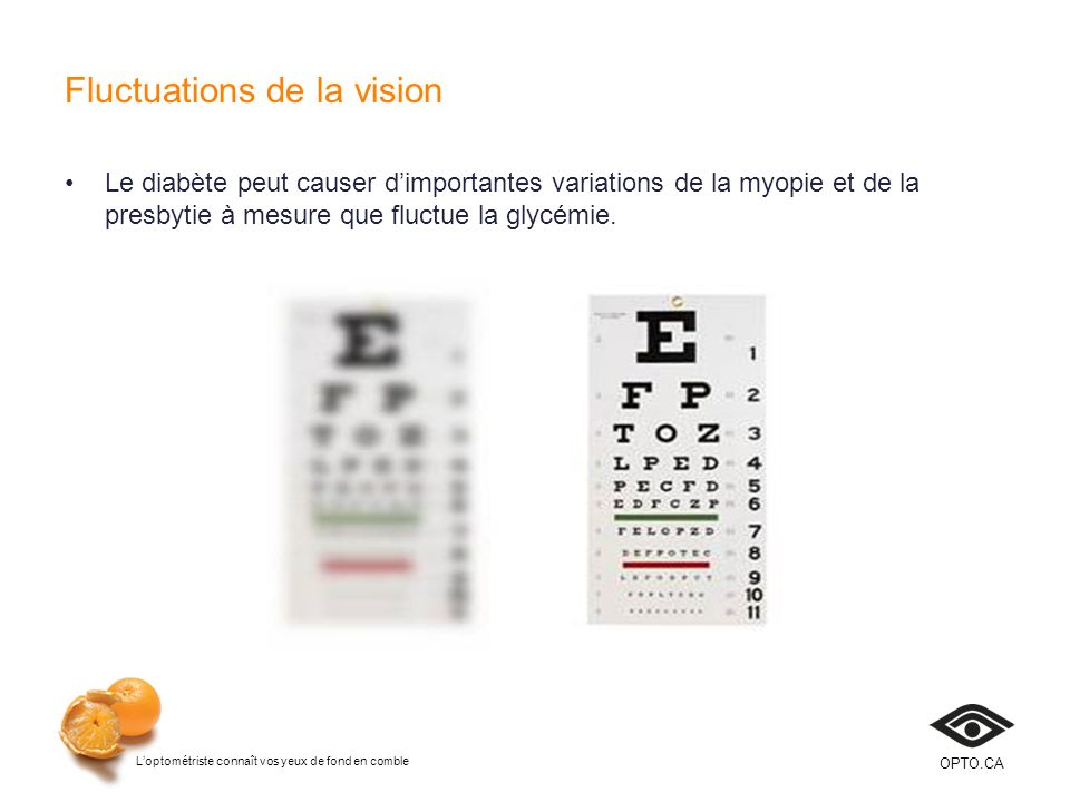Fluctuations de la vision