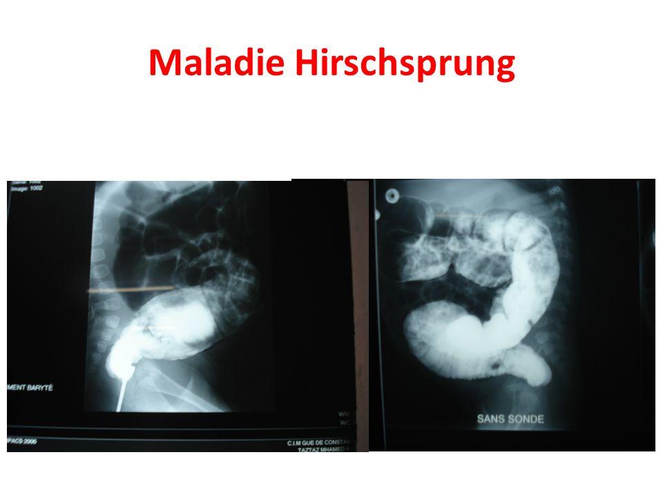 Maladie Hirschsprung