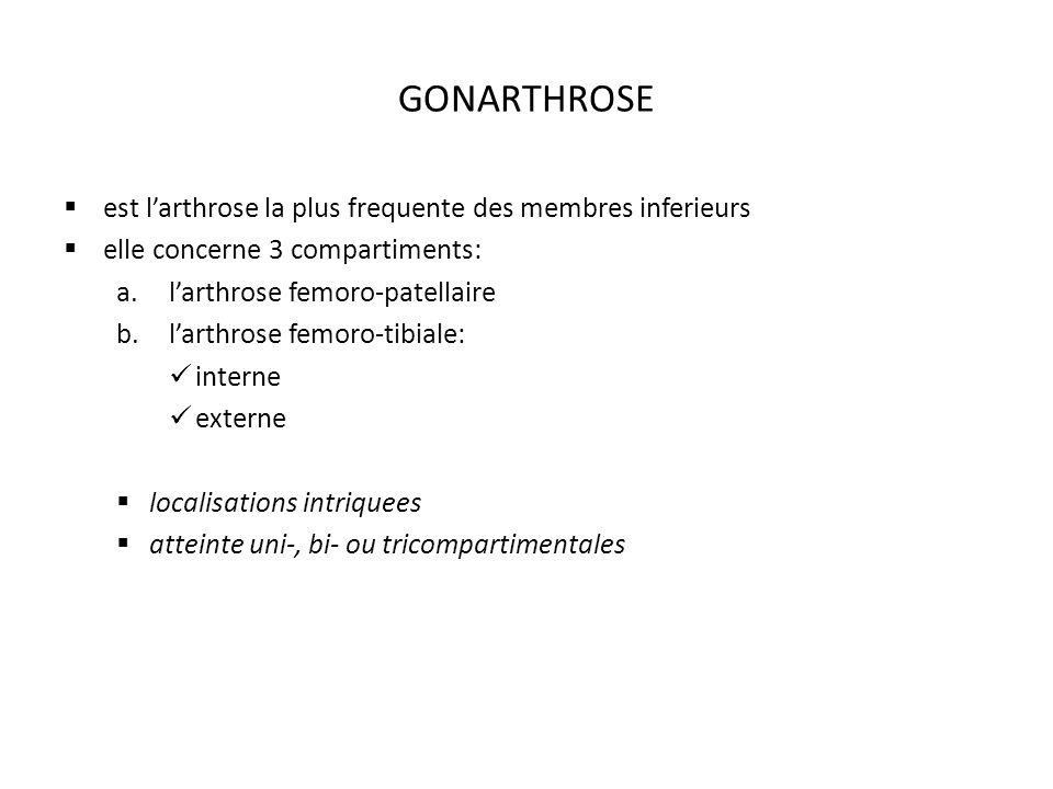 GONARTHROSE est l'arthrose la plus frequente des membres inferieurs