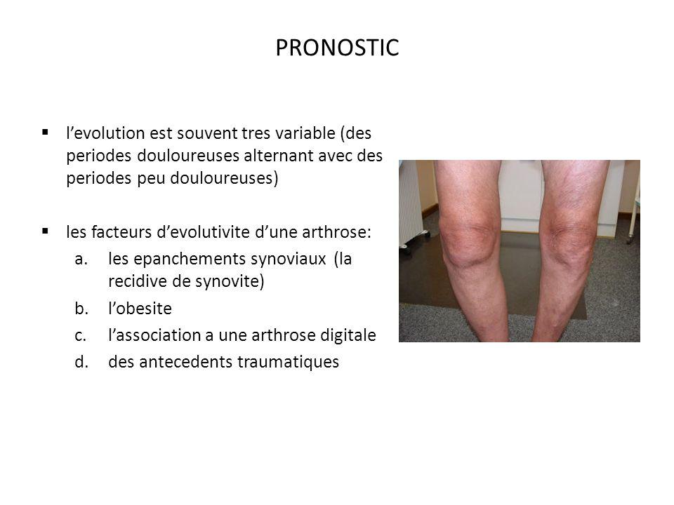 PRONOSTIC l'evolution est souvent tres variable (des periodes douloureuses alternant avec des periodes peu douloureuses)
