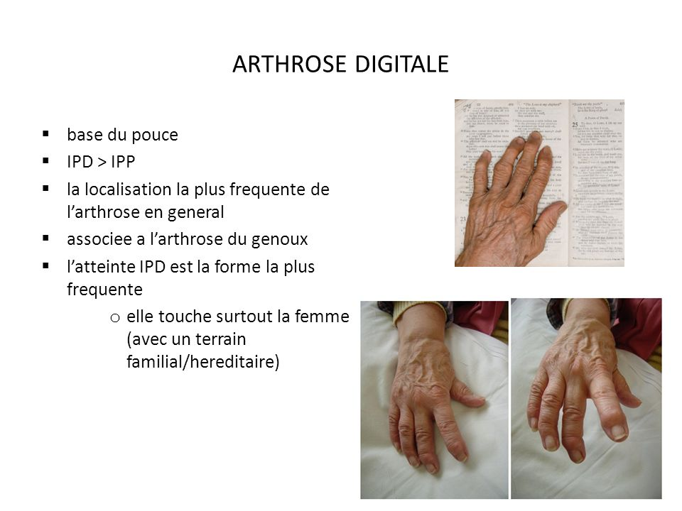 ARTHROSE DIGITALE base du pouce IPD > IPP