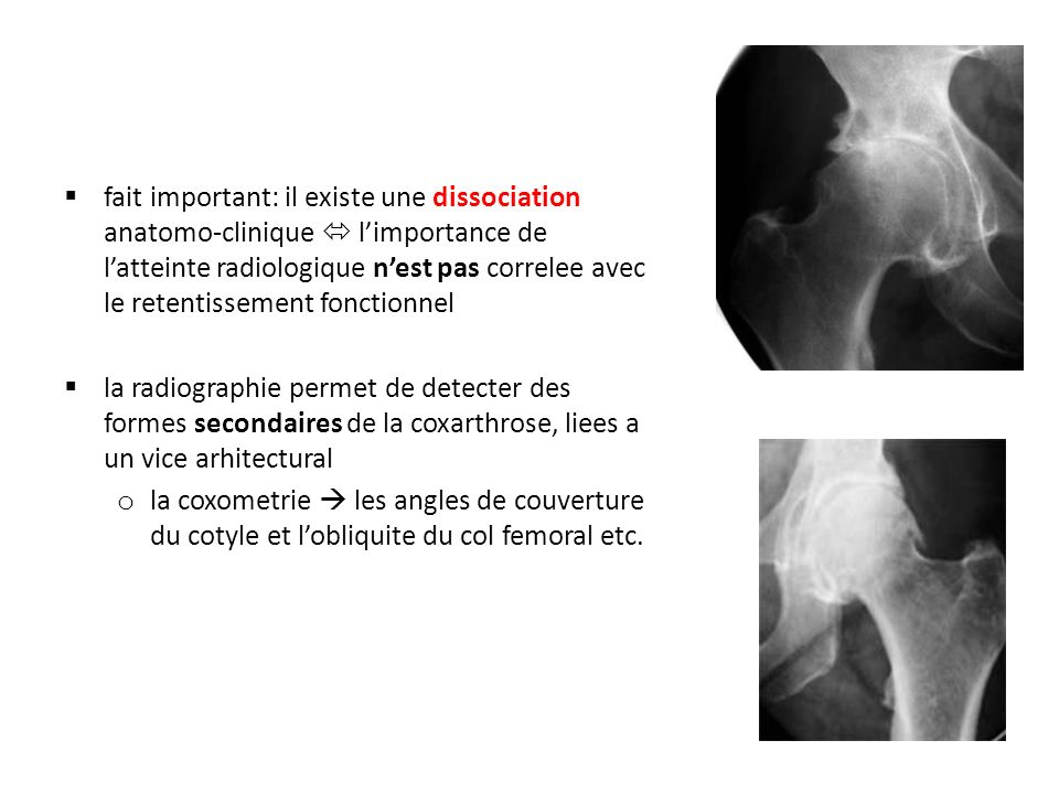 fait important: il existe une dissociation anatomo-clinique  l'importance de l'atteinte radiologique n'est pas correlee avec le retentissement fonctionnel