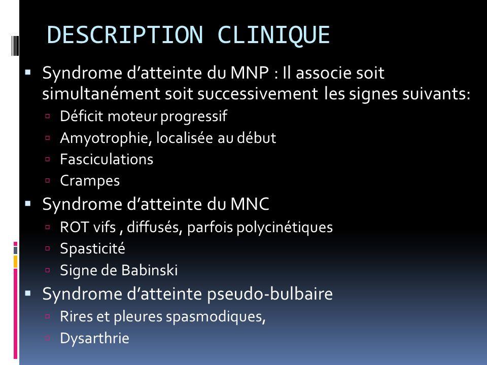 DESCRIPTION CLINIQUE Syndrome d'atteinte du MNP : Il associe soit simultanément soit successivement les signes suivants: