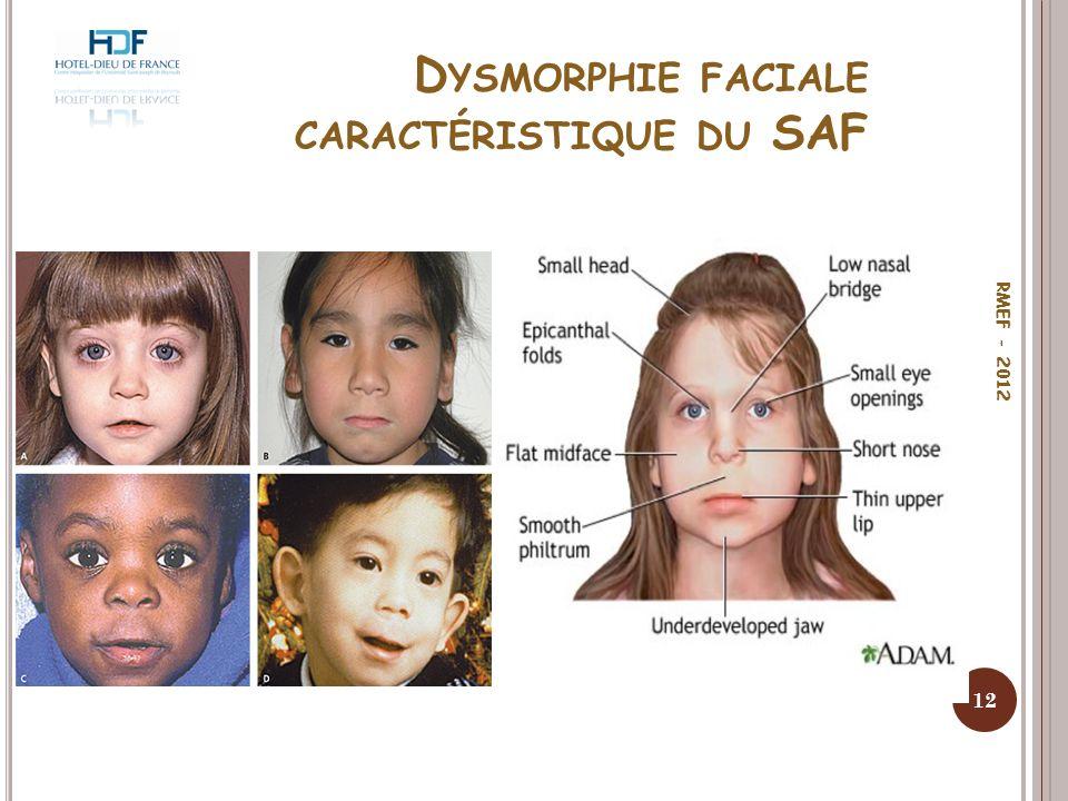 Dysmorphie faciale caractéristique du SAF