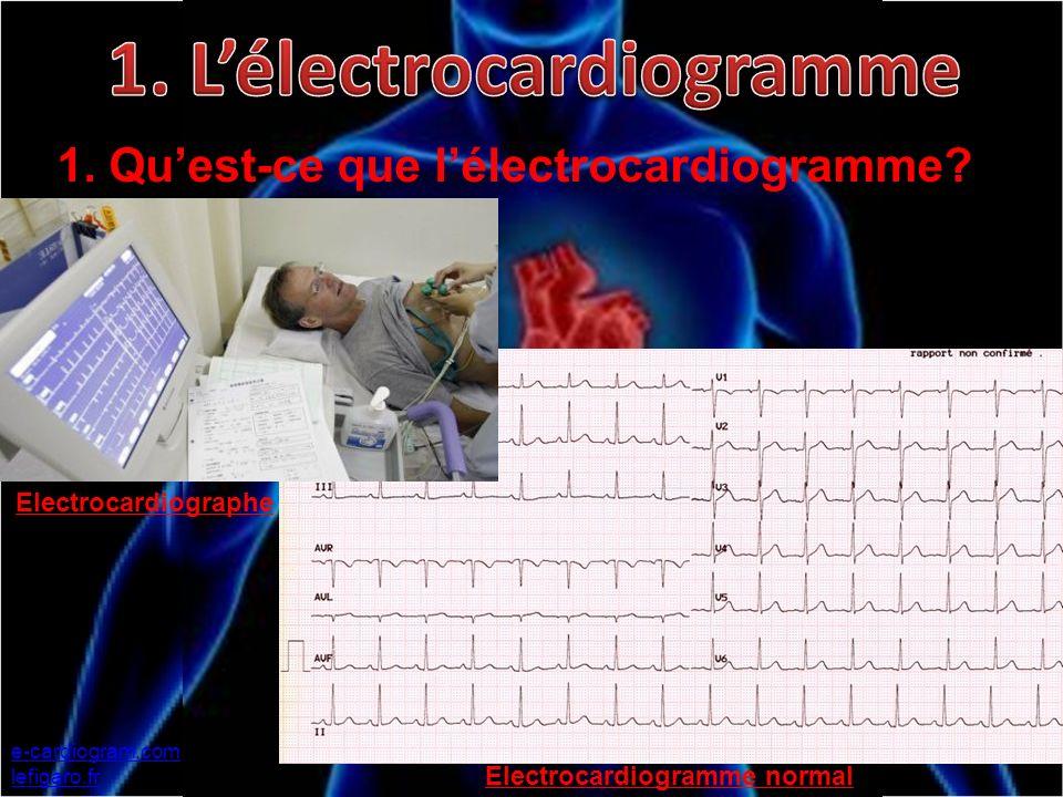 1. L'électrocardiogramme Electrocardiogramme normal