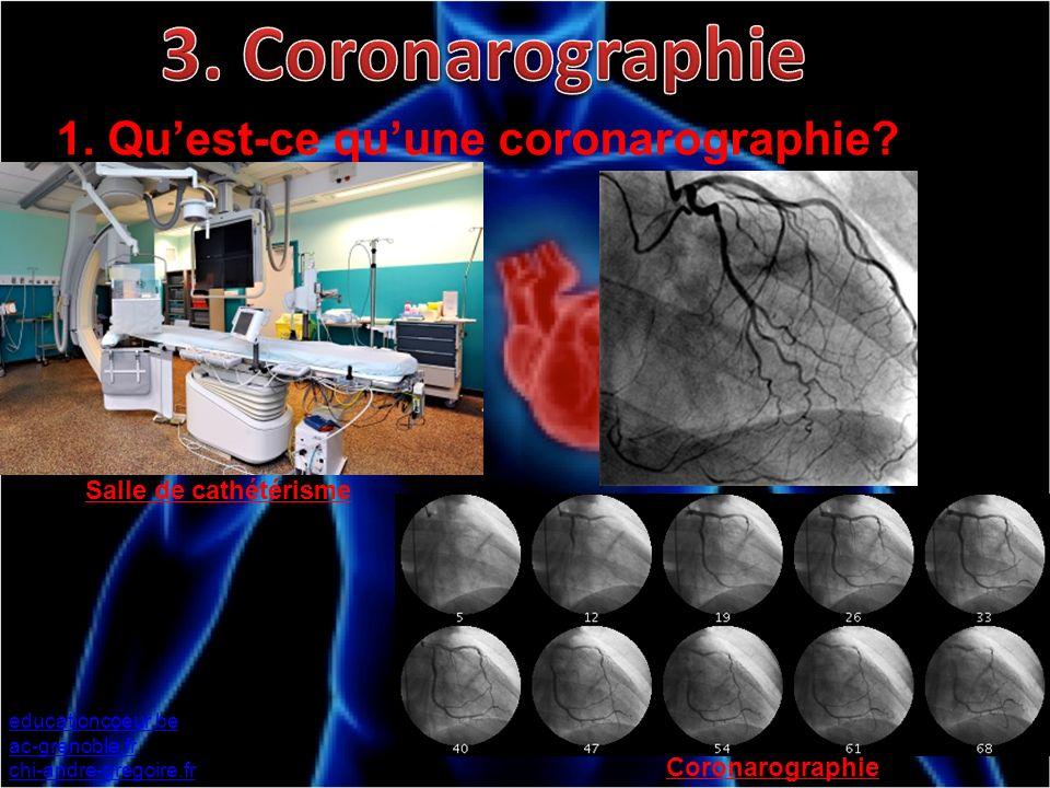 3. Coronarographie 1. Qu'est-ce qu'une coronarographie