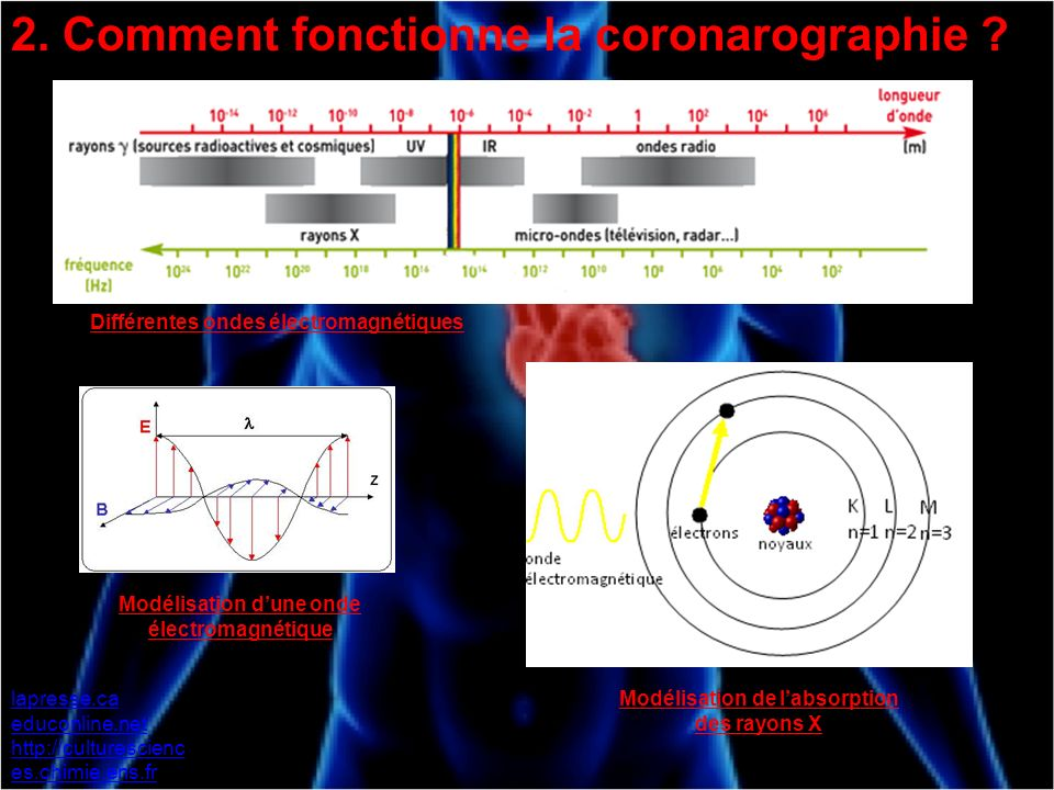 2. Comment fonctionne la coronarographie