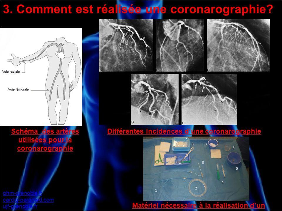 3. Comment est réalisée une coronarographie