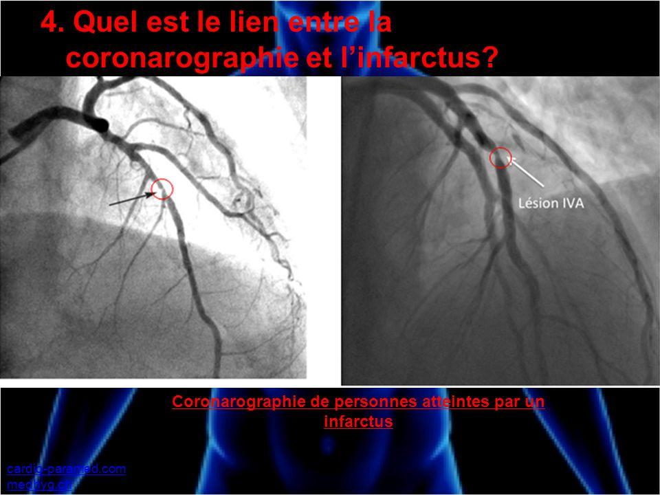 Coronarographie de personnes atteintes par un infarctus