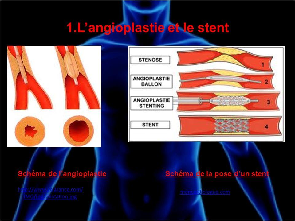 1.L'angioplastie et le stent