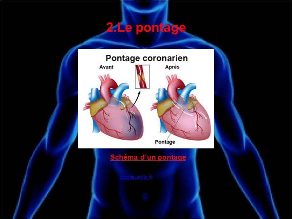 2.Le pontage Schéma d'un pontage docteurclic.fr