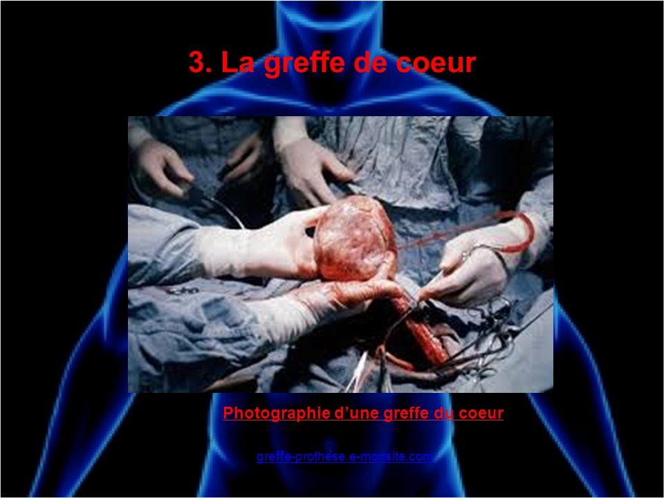 3. La greffe de coeur Photographie d'une greffe du coeur
