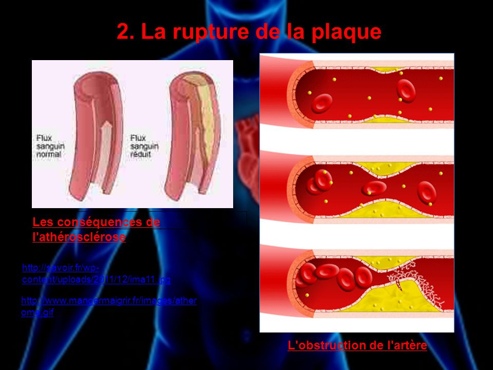 L obstruction de l artère