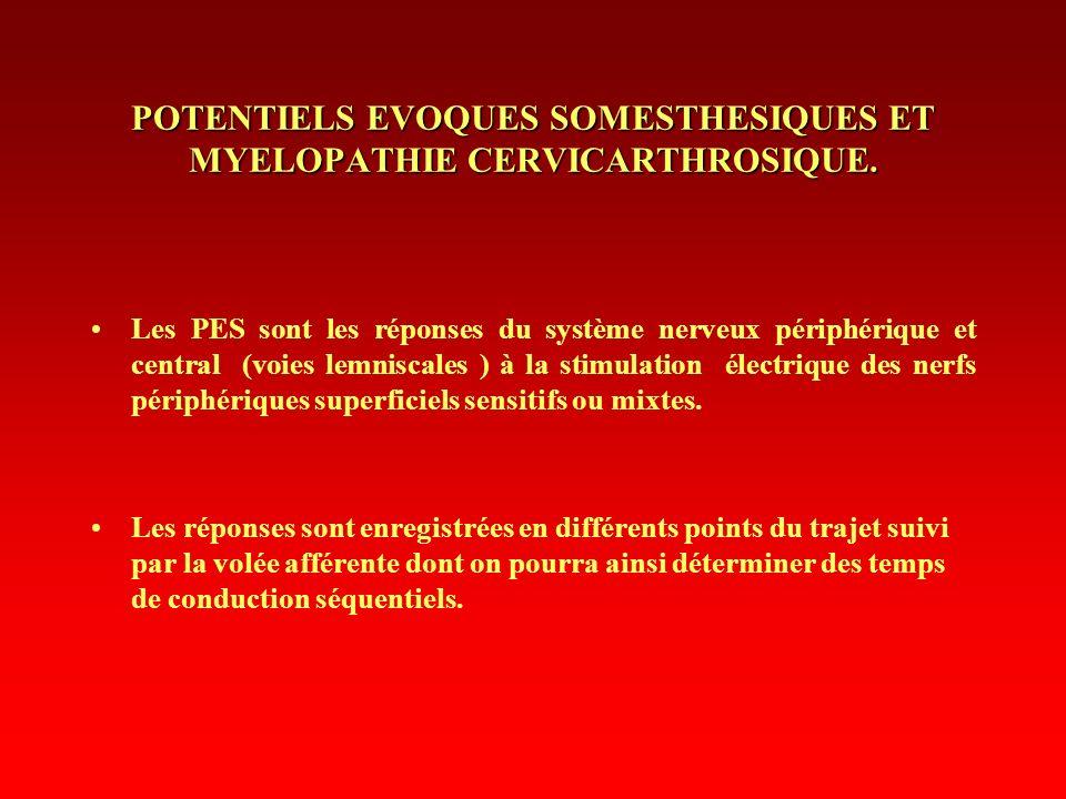 POTENTIELS EVOQUES SOMESTHESIQUES ET MYELOPATHIE CERVICARTHROSIQUE.