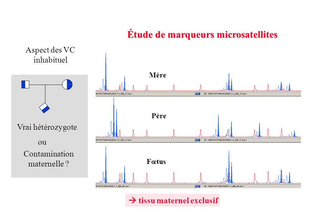 Étude de marqueurs microsatellites