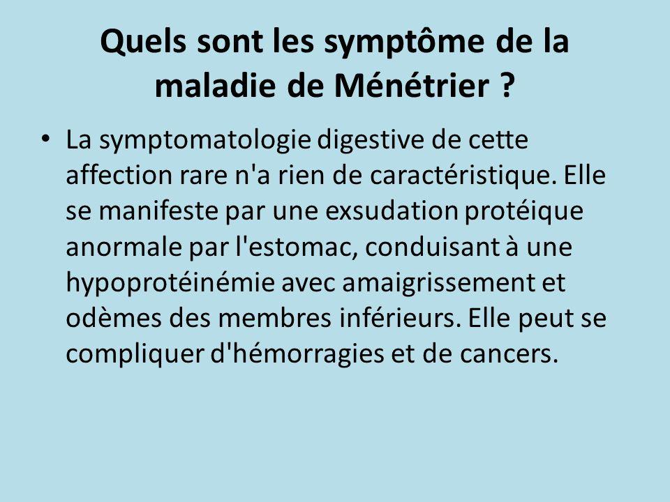Quels sont les symptôme de la maladie de Ménétrier