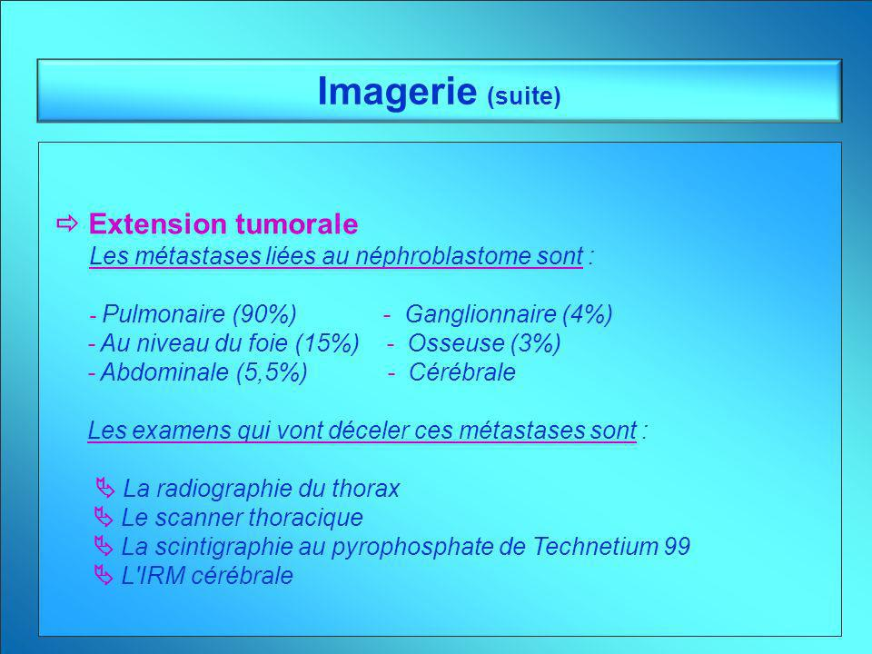 Imagerie (suite)  Extension tumorale