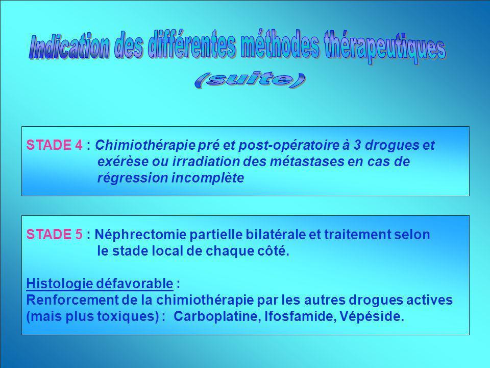 Indication des différentes méthodes thérapeutiques