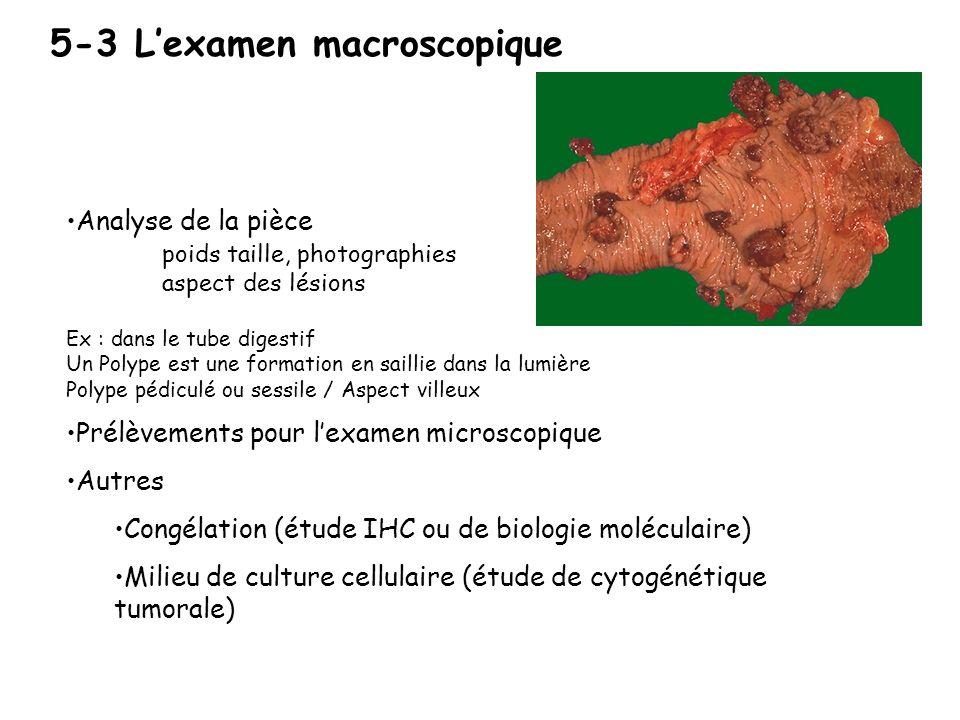 5-3 L'examen macroscopique