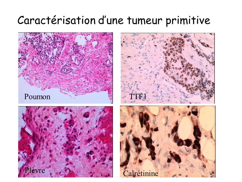 Caractérisation d'une tumeur primitive