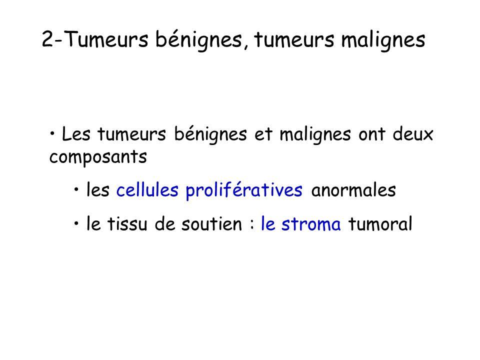 2-Tumeurs bénignes, tumeurs malignes
