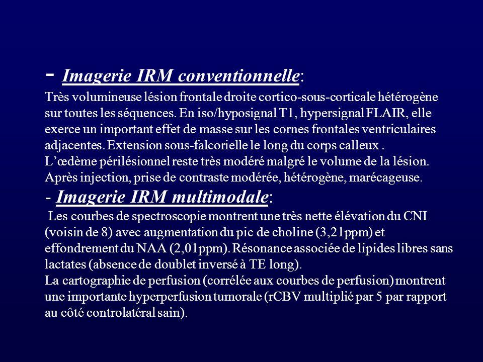 - Imagerie IRM conventionnelle: Très volumineuse lésion frontale droite cortico-sous-corticale hétérogène sur toutes les séquences.