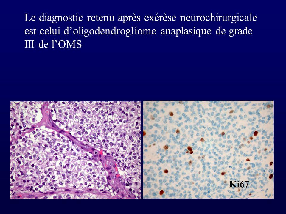 Le diagnostic retenu après exérèse neurochirurgicale est celui d'oligodendrogliome anaplasique de grade III de l'OMS