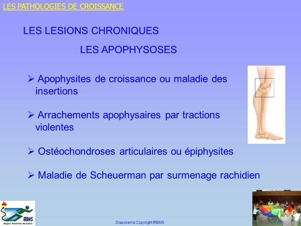 LES LESIONS CHRONIQUES