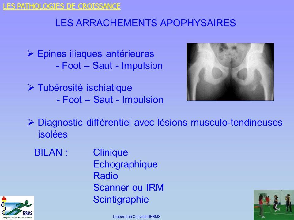 LES ARRACHEMENTS APOPHYSAIRES