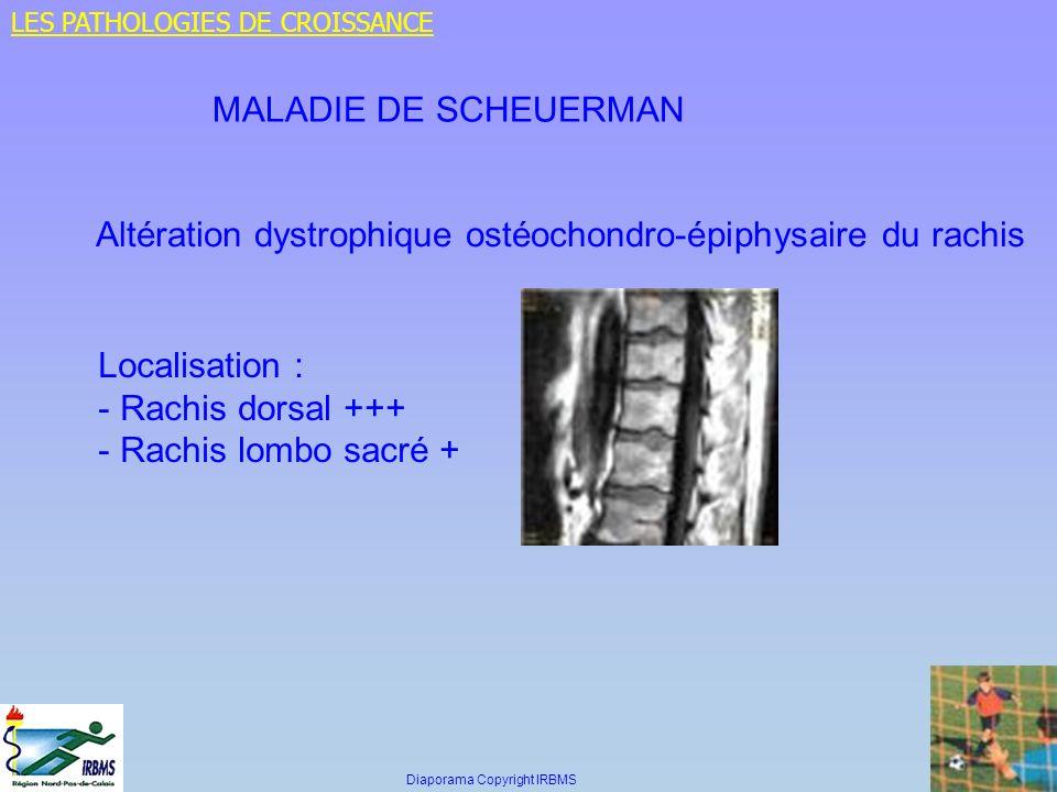 Altération dystrophique ostéochondro-épiphysaire du rachis