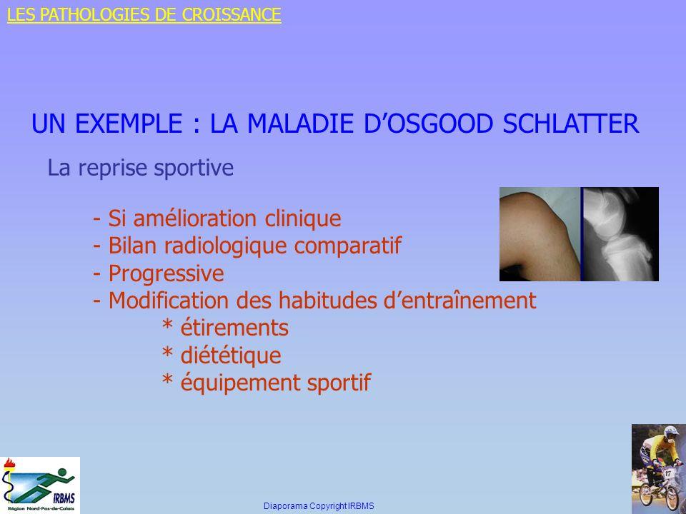 UN EXEMPLE : LA MALADIE D'OSGOOD SCHLATTER