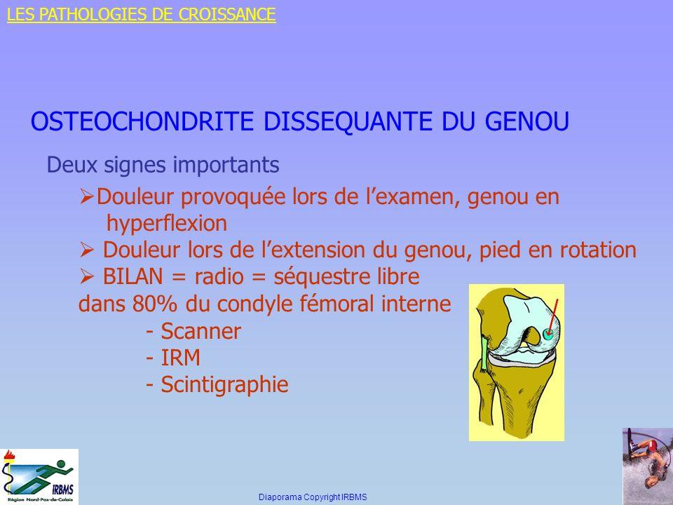 OSTEOCHONDRITE DISSEQUANTE DU GENOU