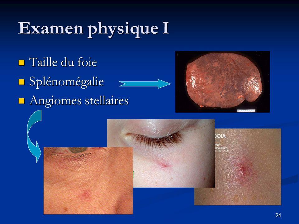 Examen physique I Taille du foie Splénomégalie Angiomes stellaires