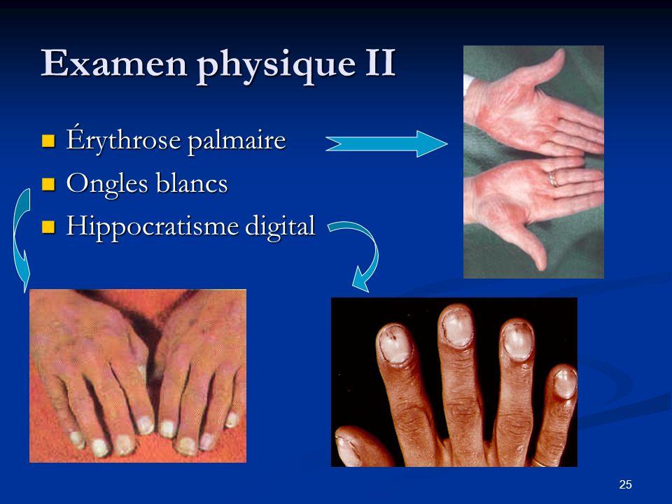 Examen physique II Érythrose palmaire Ongles blancs