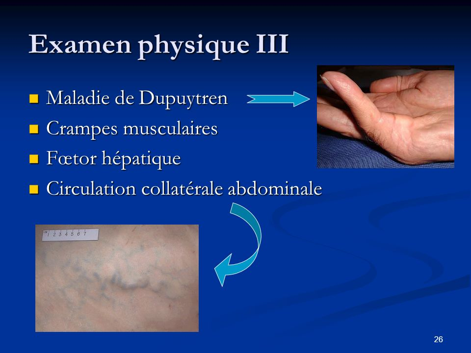 Examen physique III Maladie de Dupuytren Crampes musculaires