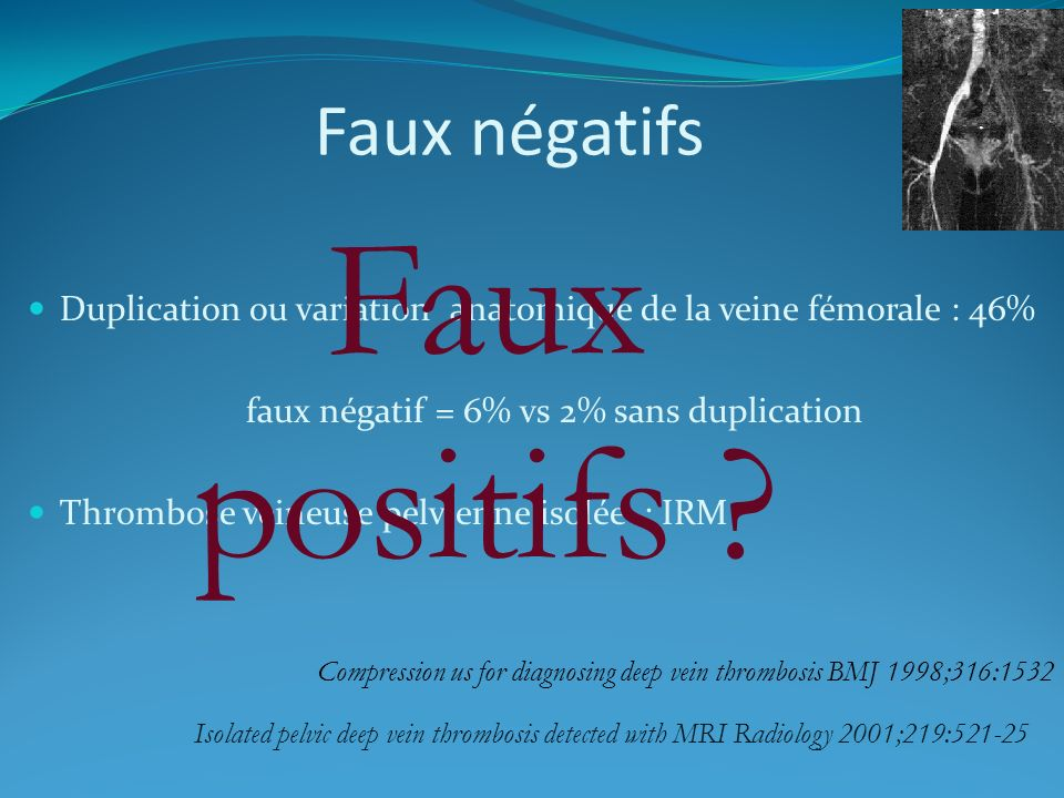 faux négatif = 6% vs 2% sans duplication