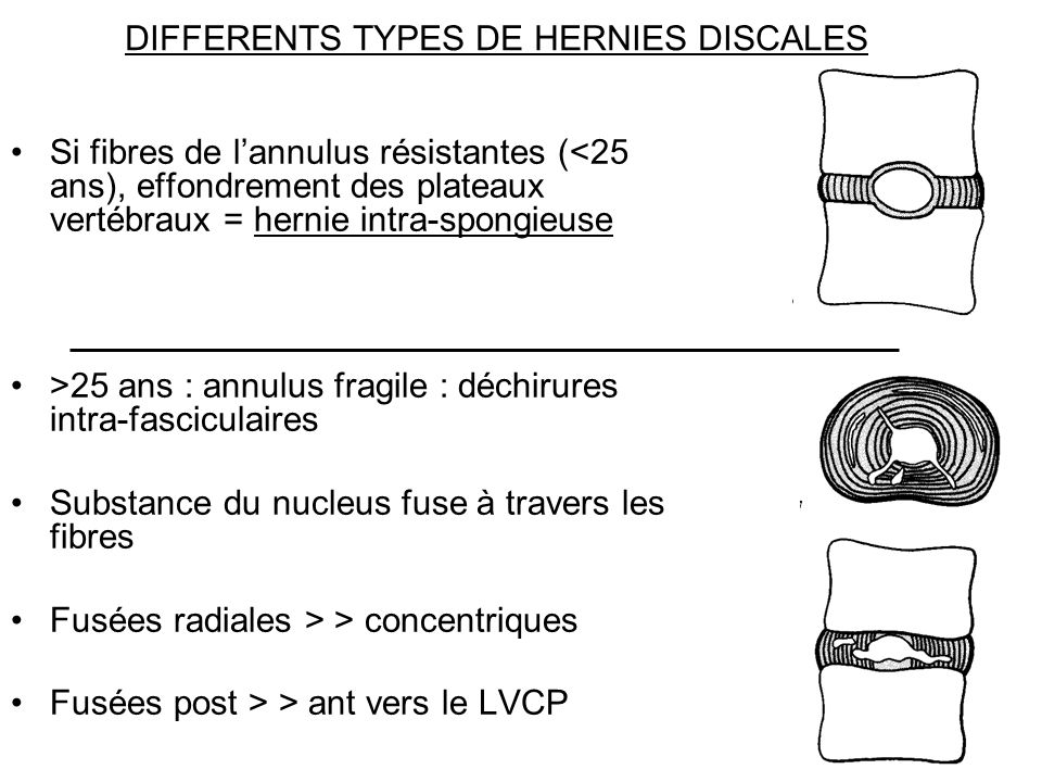 DIFFERENTS TYPES DE HERNIES DISCALES