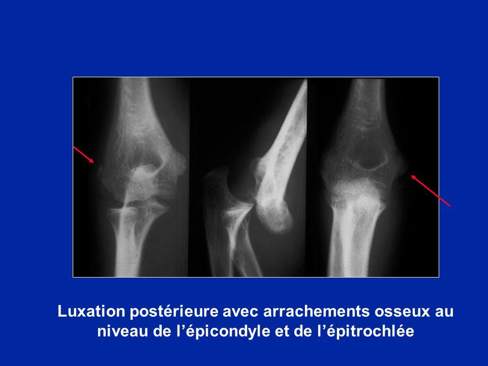 Luxation postérieure avec arrachements osseux au niveau de l'épicondyle et de l'épitrochlée