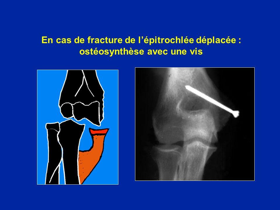 En cas de fracture de l'épitrochlée déplacée : ostéosynthèse avec une vis