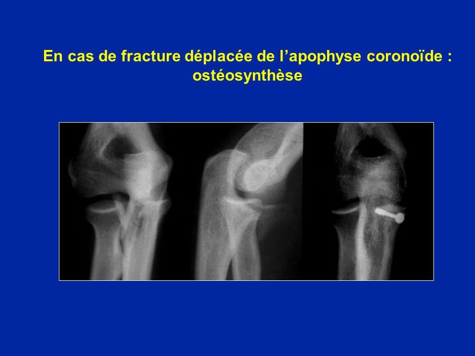 En cas de fracture déplacée de l'apophyse coronoïde : ostéosynthèse